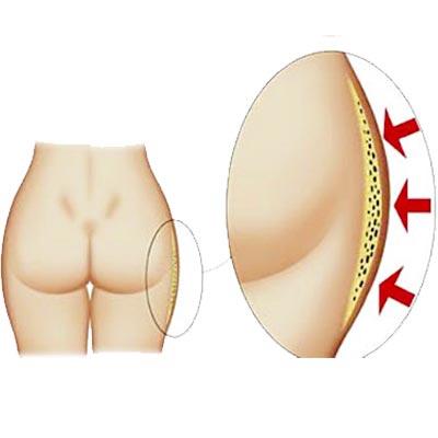 ridurre-cuscinetti-cellulite