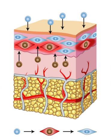 pressione-osmotica-sale-sulla-pelle-2-370×464
